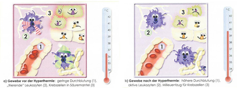 Das linke Bild zeigt das Gewebe vor der Fiebertherapie, das Bild rechts stellt das Gewebe nach der Fiebertherapie dar: eine höhere Durchblutung und aktive Leukozyten sorgen für einen Mileuentzug für die Krebszellen